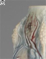 MGN14027-vase gres epi_3.jpg